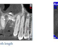 Root Canal Morphology of Maxillary Second Molars according to Age and Gender in a Selected Iranian Population : A Cone-Beam Computed Tomography Evaluation