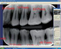 Evaluation of alveolar crest bone loss via premolar bitewing radiographs : presentation of new method