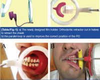 Utility of a Newly Designed Film Holder for Premolar Bitewing Radiography