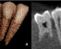 Diagnostic accuracy of Cone Beam Computed Tomography, conventional and digital radiographs in detecting interproximal caries